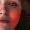 Что советуют специалисты, если горит лицо при ВСД?