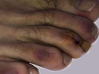 сыпь на коже при ковид-19 на пальцах ног